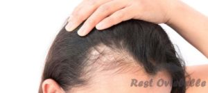 What is cause hair loss