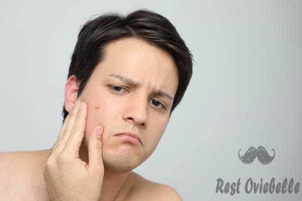 What Causes Acne?
