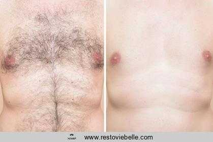 best body groomers for menand women