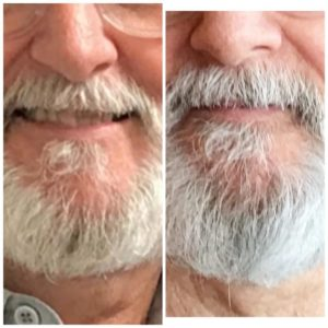 beard grow xl before and after
