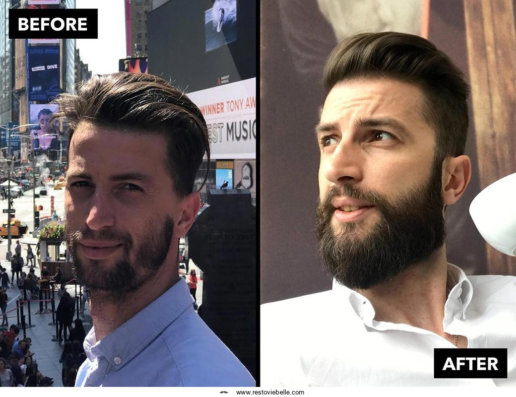 How to Make Your Patchy Beard Thicker